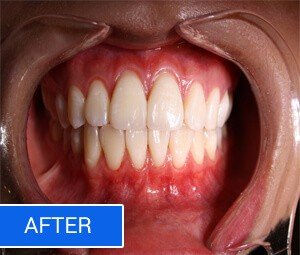 After Teeth Whitening