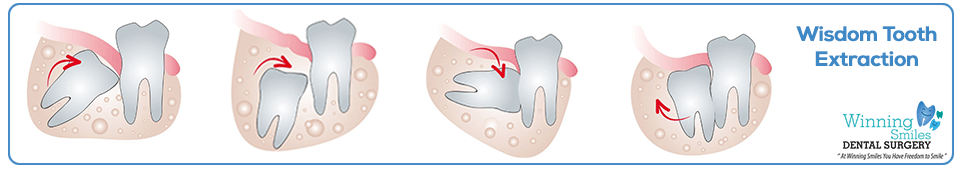Wisdom Tooth Extraction removal