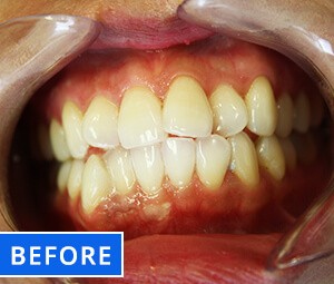 Teeth Whitening After before Photo 2
