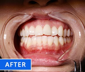 Teeth Whitening After before Photo