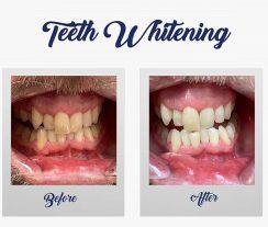 Teeth Whitening - Winning Smile Dental Surgery - Blacktown