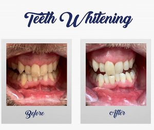 Teeth Whitening - Winning Smile Dental Surgery - Blacktown