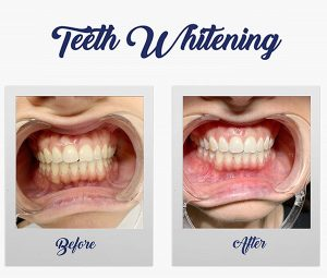 Teeth Whitening - Winning Smile Dental Surgery - Denham Court